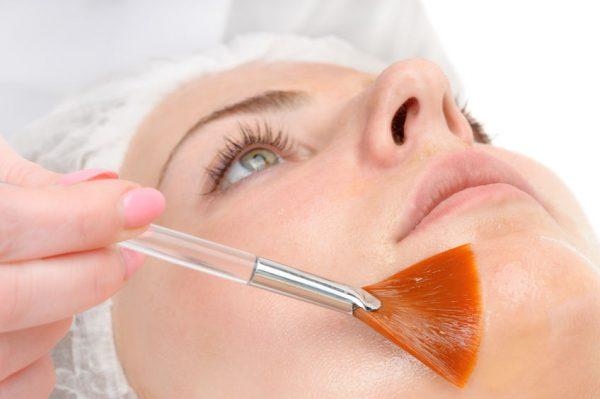 Behandlungen - Spezial Peeling